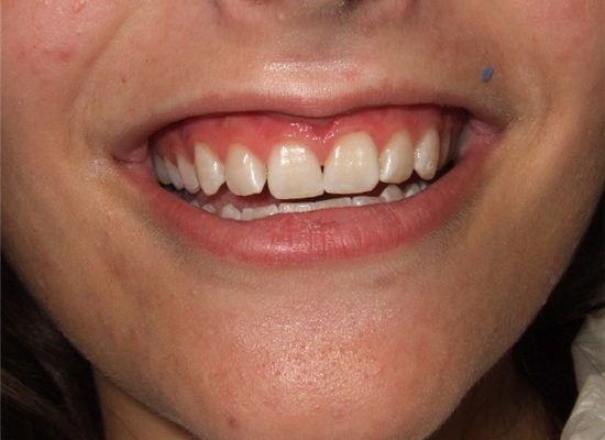 tooth-whitening_1