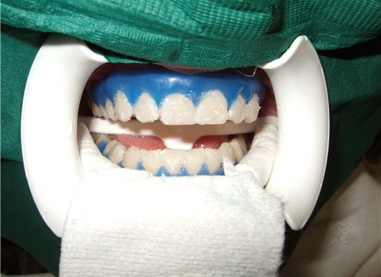 tooth-whitening_2