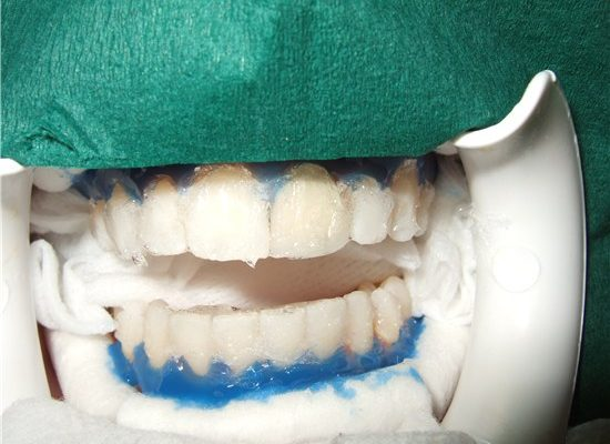 tooth-whitening_3